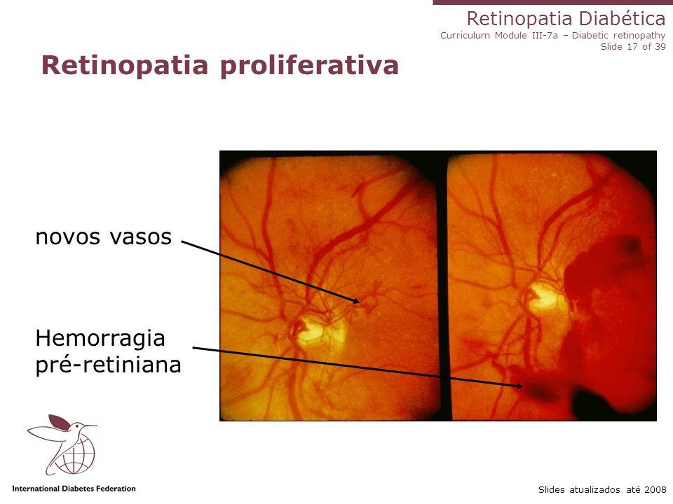 Retinopatia Diabética Curriculum Module III-7a – Diabetic retinopathy Slide 17 of 39 Slides atualizados até 2008 Retinopatia proliferativa novos vasos
