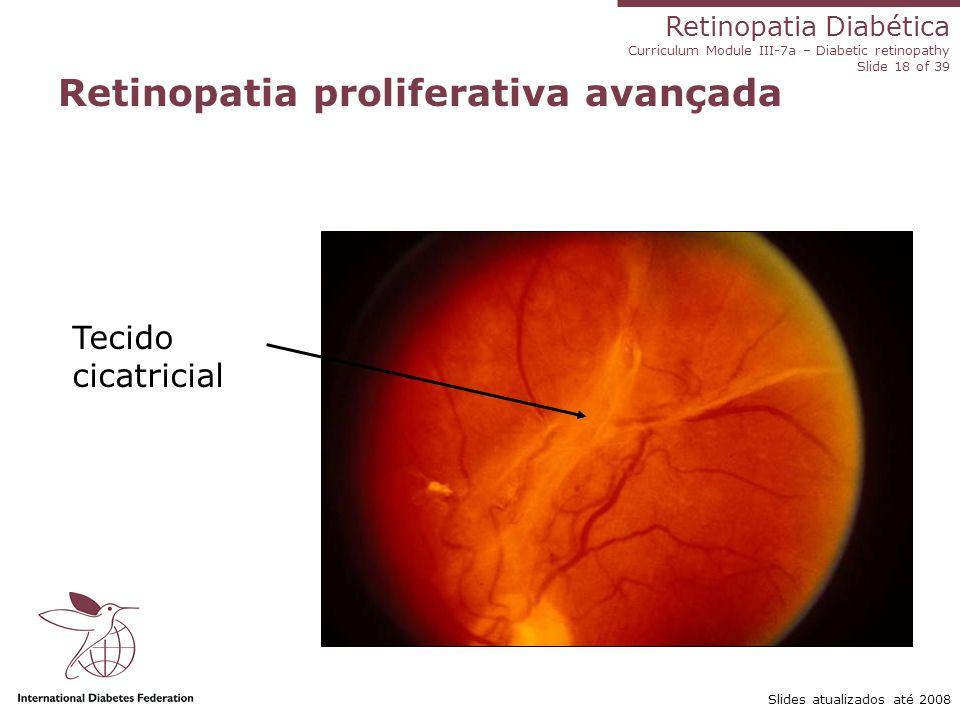 Retinopatia Diabética Curriculum Module III-7a – Diabetic retinopathy Slide 18 of 39 Slides atualizados até 2008 Retinopatia proliferativa avançada Te