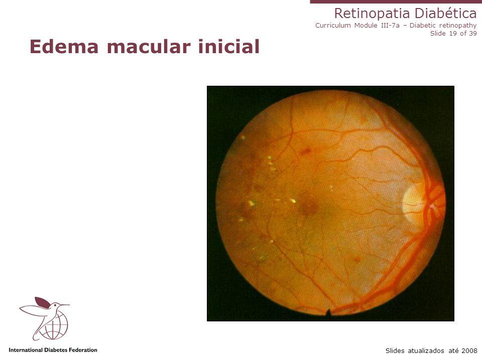 Retinopatia Diabética Curriculum Module III-7a – Diabetic retinopathy Slide 19 of 39 Slides atualizados até 2008 Edema macular inicial