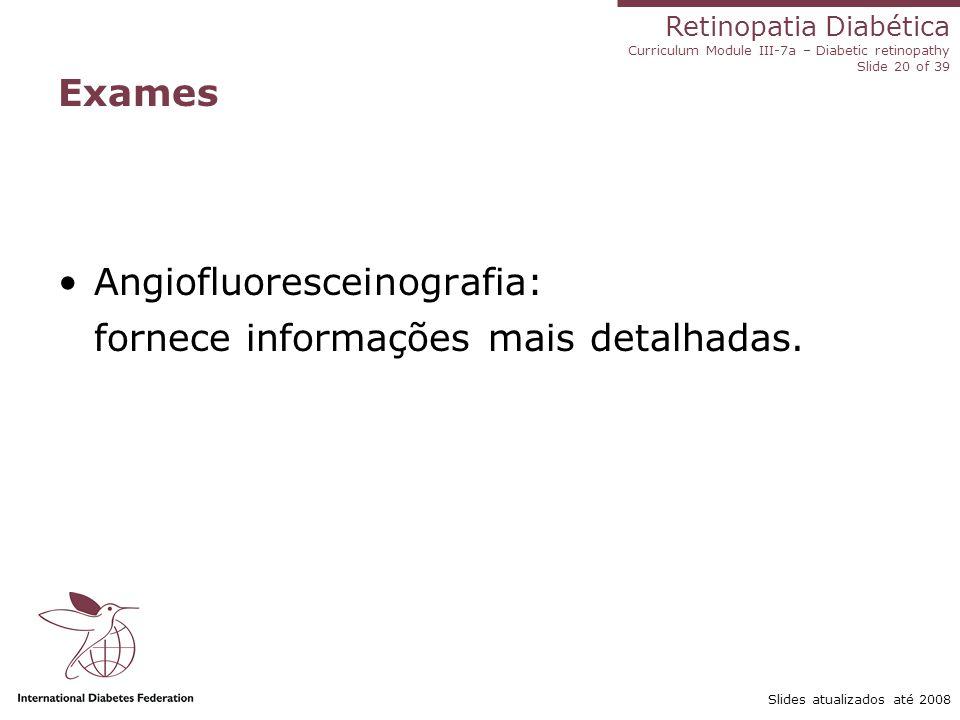 Retinopatia Diabética Curriculum Module III-7a – Diabetic retinopathy Slide 20 of 39 Slides atualizados até 2008 Exames Angiofluoresceinografia: forne