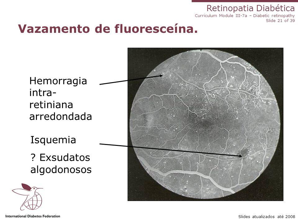 Retinopatia Diabética Curriculum Module III-7a – Diabetic retinopathy Slide 21 of 39 Slides atualizados até 2008 Vazamento de fluoresceína. Hemorragia