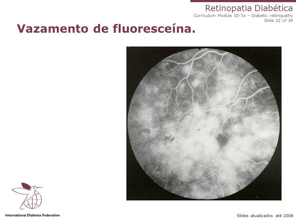 Retinopatia Diabética Curriculum Module III-7a – Diabetic retinopathy Slide 22 of 39 Slides atualizados até 2008 Vazamento de fluoresceína.