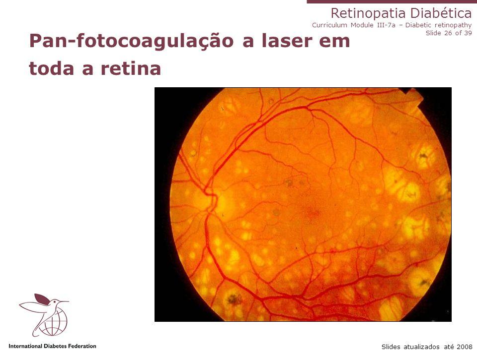 Retinopatia Diabética Curriculum Module III-7a – Diabetic retinopathy Slide 26 of 39 Slides atualizados até 2008 Pan-fotocoagulação a laser em toda a
