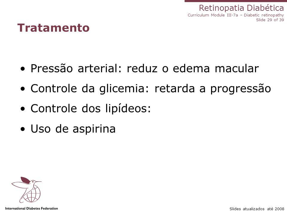 Retinopatia Diabética Curriculum Module III-7a – Diabetic retinopathy Slide 29 of 39 Slides atualizados até 2008 Tratamento Pressão arterial: reduz o