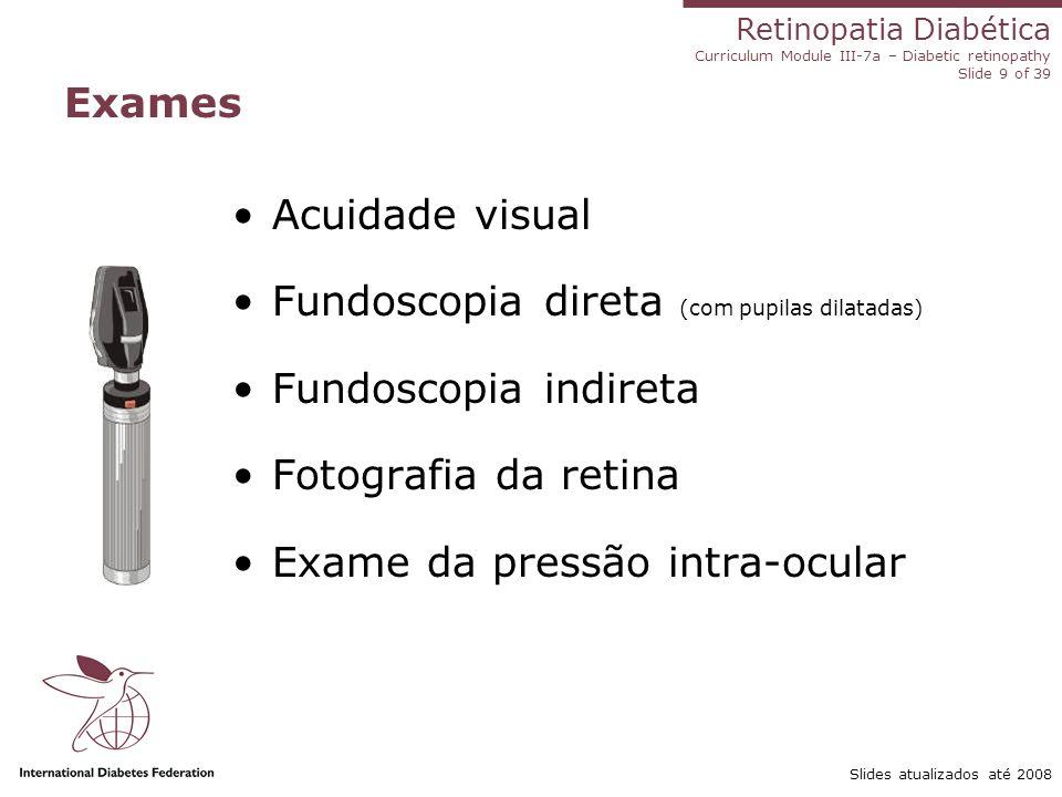 Retinopatia Diabética Curriculum Module III-7a – Diabetic retinopathy Slide 9 of 39 Slides atualizados até 2008 Exames Acuidade visual Fundoscopia dir