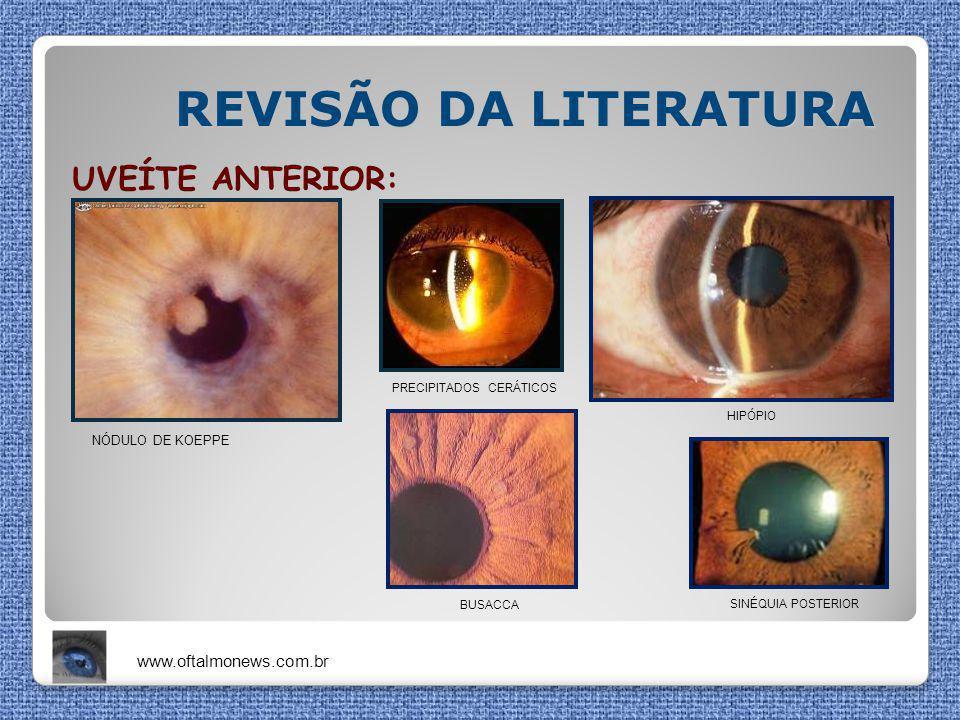 REVISÃO DA LITERATURA UVEÍTE ANTERIOR: NÓDULO DE KOEPPE HIPÓPIO BUSACCA PRECIPITADOS CERÁTICOS SINÉQUIA POSTERIOR www.oftalmonews.com.br