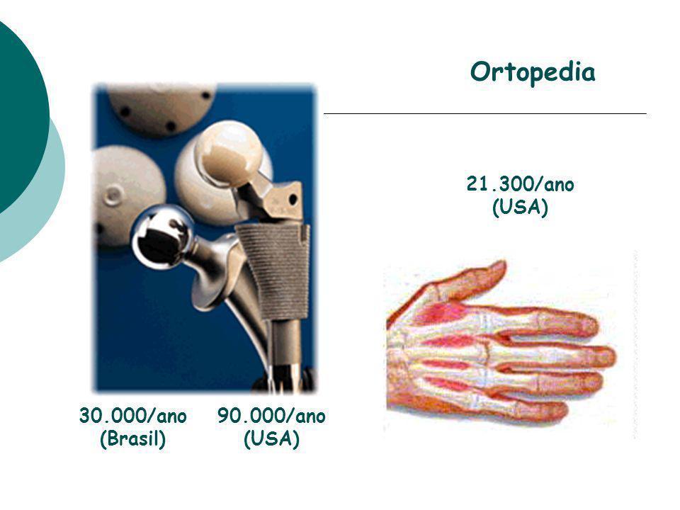 21.300/ano (USA) Ortopedia 30.000/ano (Brasil) 90.000/ano (USA)