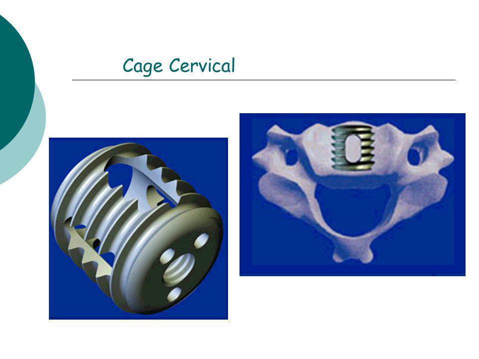 Cage Cervical