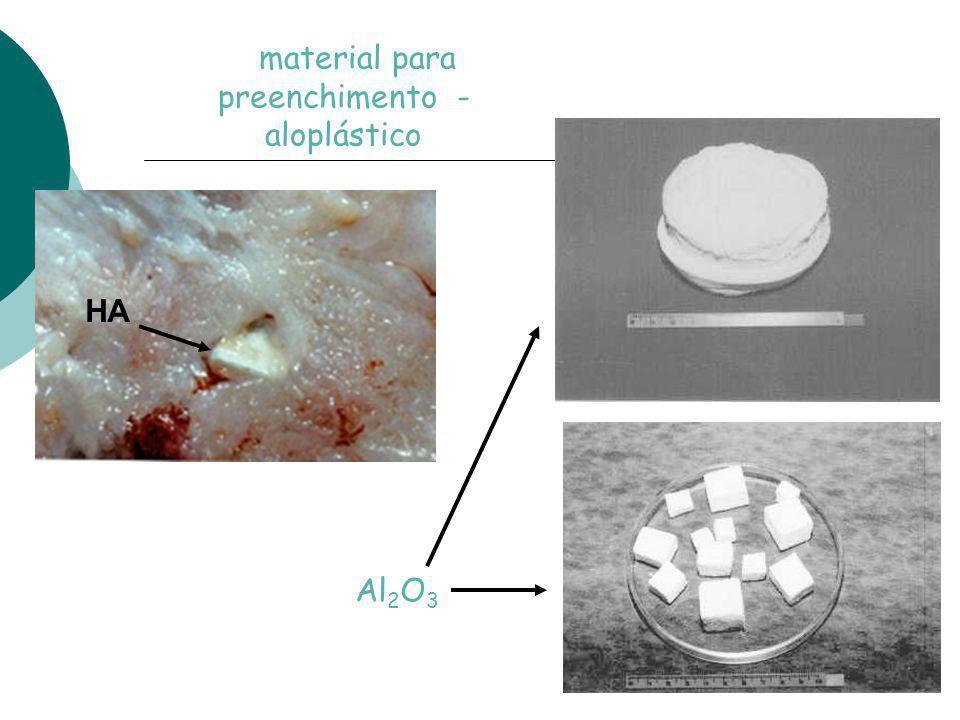 material para preenchimento - aloplástico HA Al 2 O 3