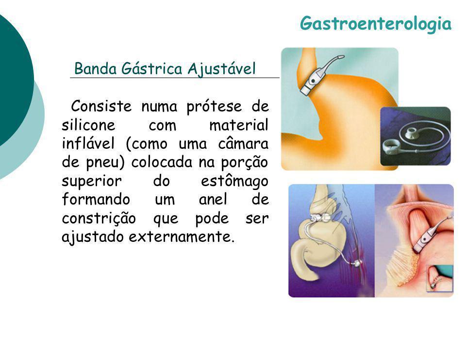 Banda Gástrica Ajustável Consiste numa prótese de silicone com material inflável (como uma câmara de pneu) colocada na porção superior do estômago for