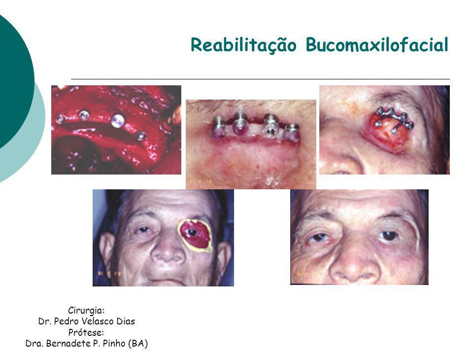 Cirurgia: Dr. Pedro Velasco Dias Prótese: Dra. Bernadete P. Pinho (BA) Reabilitação Bucomaxilofacial