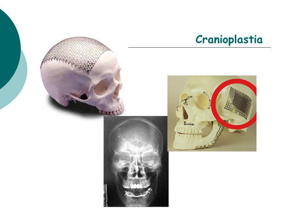 Cranioplastia