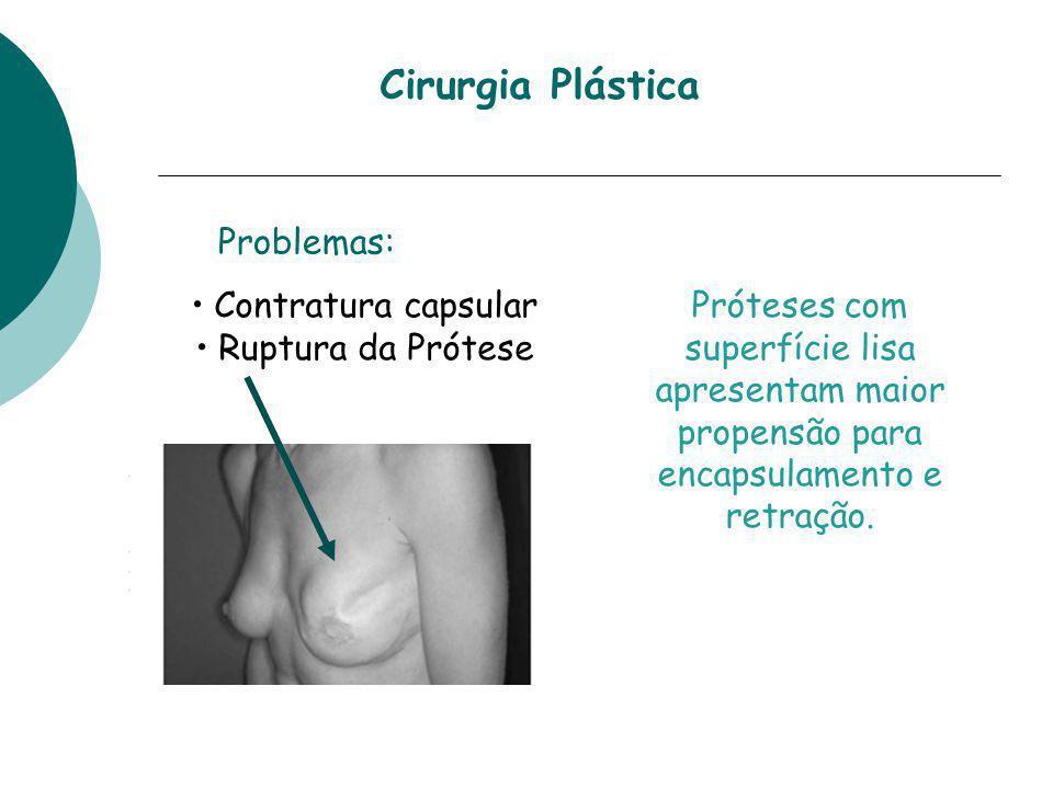 Contratura capsular Ruptura da Prótese Problemas: Cirurgia Plástica Próteses com superfície lisa apresentam maior propensão para encapsulamento e retr