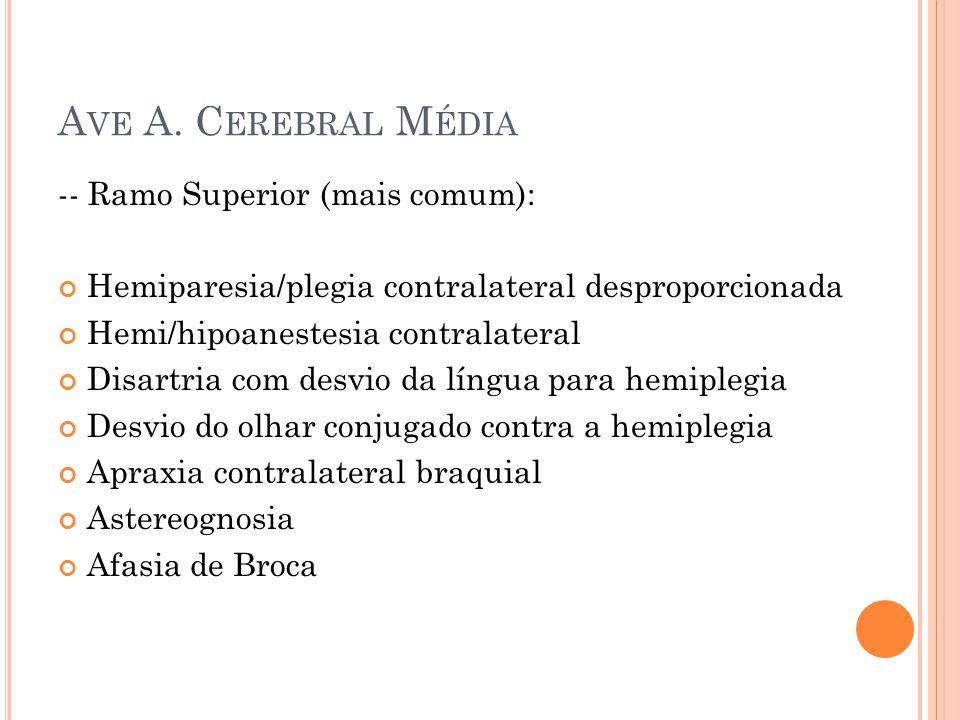 -- Ramo Superior (mais comum): Hemiparesia/plegia contralateral desproporcionada Hemi/hipoanestesia contralateral Disartria com desvio da língua para