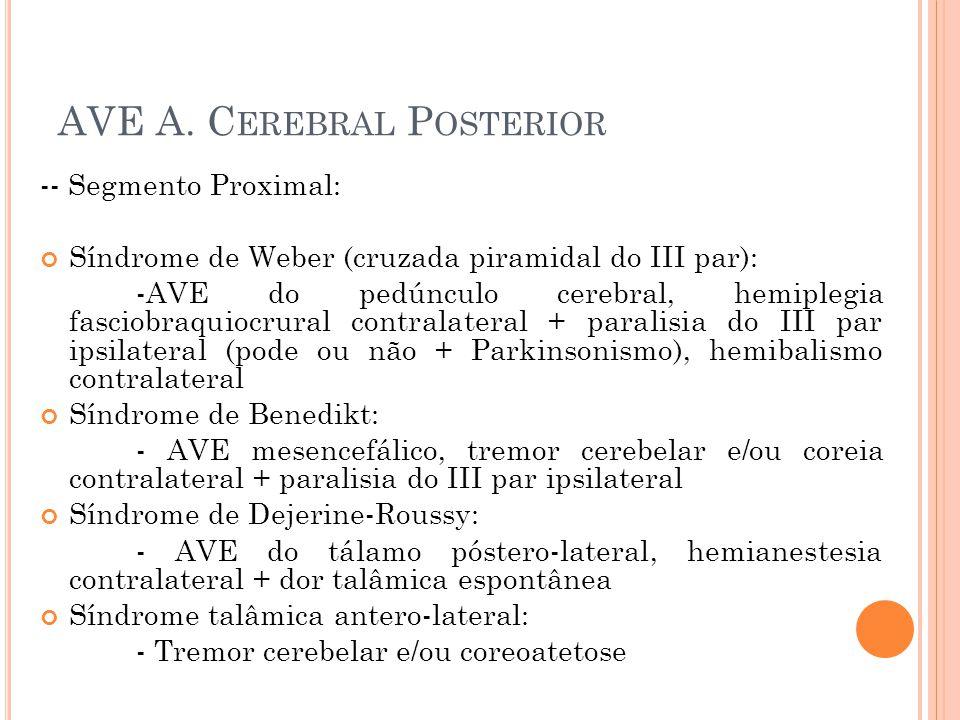 AVE A. C EREBRAL P OSTERIOR -- Segmento Proximal: Síndrome de Weber (cruzada piramidal do III par): -AVE do pedúnculo cerebral, hemiplegia fasciobraqu