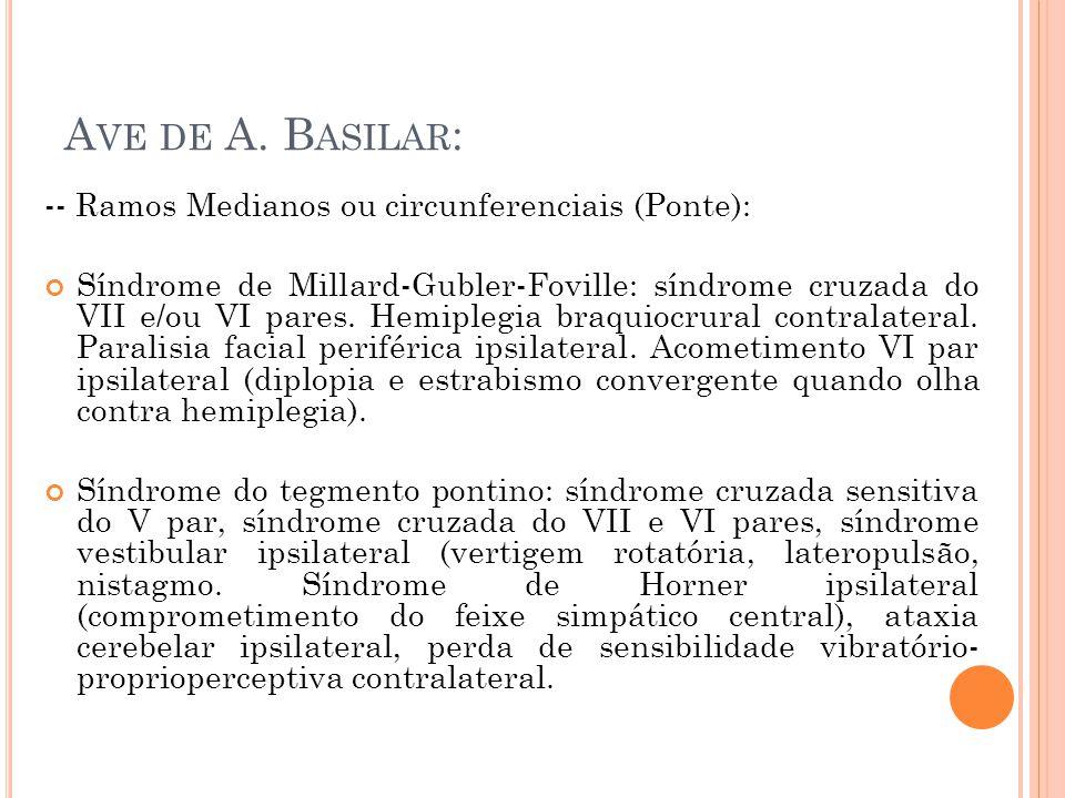 A VE DE A. B ASILAR : -- Ramos Medianos ou circunferenciais (Ponte): Síndrome de Millard-Gubler-Foville: síndrome cruzada do VII e/ou VI pares. Hemipl