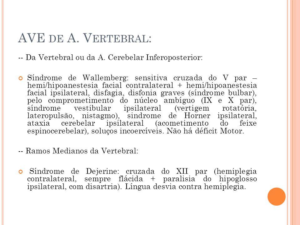 AVE DE A. V ERTEBRAL : -- Da Vertebral ou da A. Cerebelar Inferoposterior: Síndrome de Wallemberg: sensitiva cruzada do V par – hemi/hipoanestesia fac