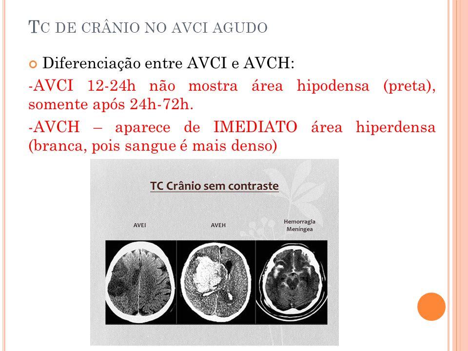 T C DE CRÂNIO NO AVCI AGUDO Diferenciação entre AVCI e AVCH: -AVCI 12-24h não mostra área hipodensa (preta), somente após 24h-72h. -AVCH – aparece de