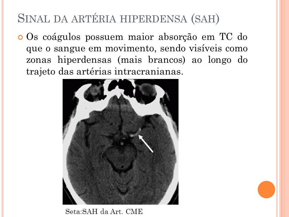 S INAL DA ARTÉRIA HIPERDENSA ( SAH ) Os coágulos possuem maior absorção em TC do que o sangue em movimento, sendo visíveis como zonas hiperdensas (mai