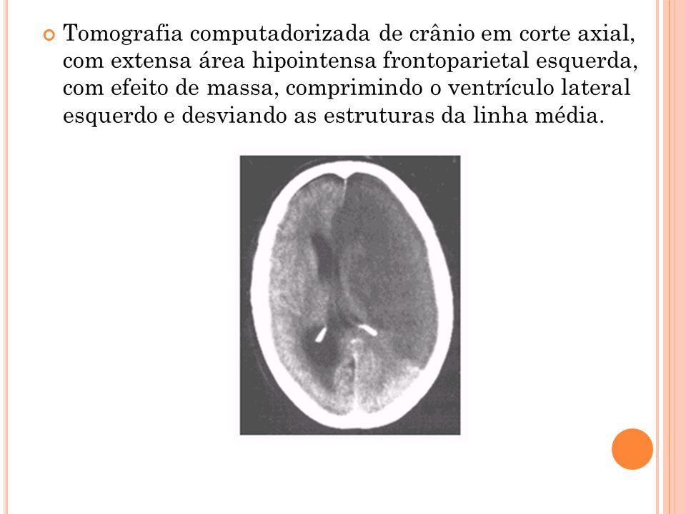 Tomografia computadorizada de crânio em corte axial, com extensa área hipointensa frontoparietal esquerda, com efeito de massa, comprimindo o ventrícu
