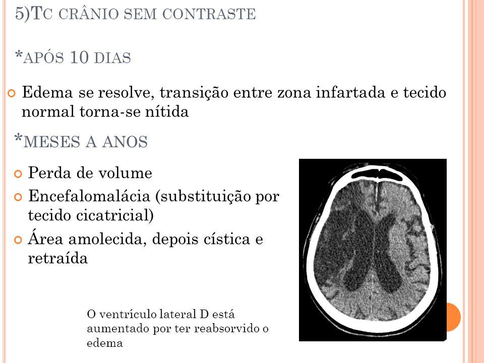5)T C CRÂNIO SEM CONTRASTE * APÓS 10 DIAS Edema se resolve, transição entre zona infartada e tecido normal torna-se nítida * MESES A ANOS Perda de vol
