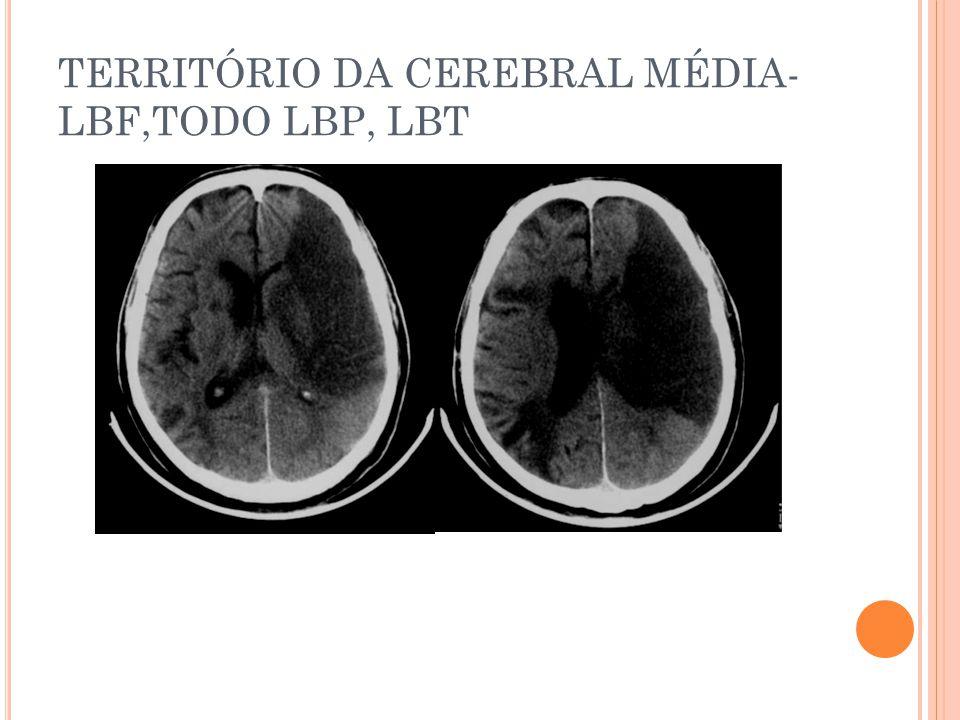 TERRITÓRIO DA CEREBRAL MÉDIA- LBF,TODO LBP, LBT