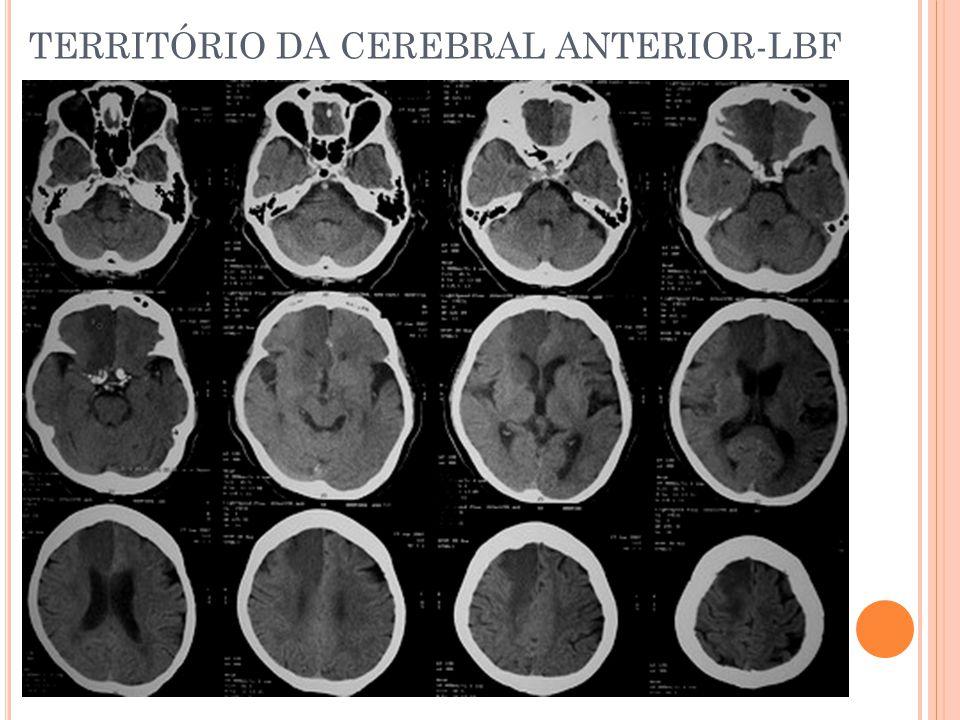 TERRITÓRIO DA CEREBRAL ANTERIOR-LBF