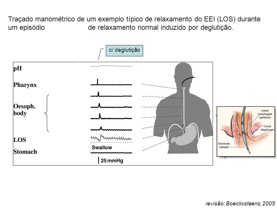revisão: Boeckxstaens, 2005 Traçado manométrico de um exemplo típico de relaxamento do EEI (LOS) durante um episódio de refluxo e de relaxamento norma