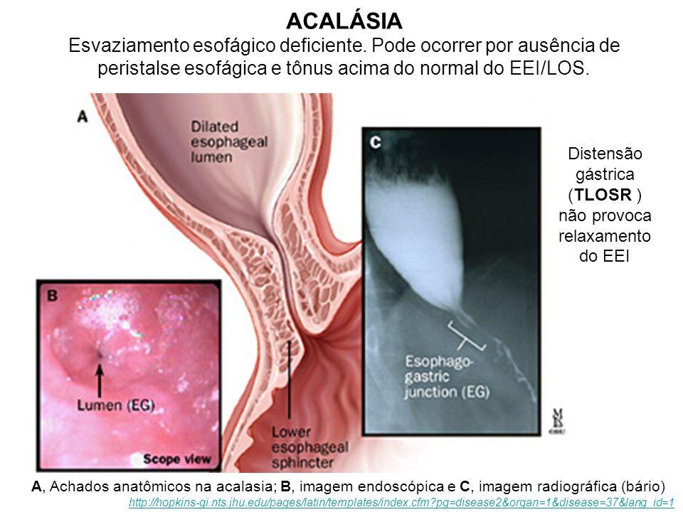 A, Achados anatômicos na acalasia; B, imagem endoscópica e C, imagem radiográfica (bário) http://hopkins-gi.nts.jhu.edu/pages/latin/templates/index.cf