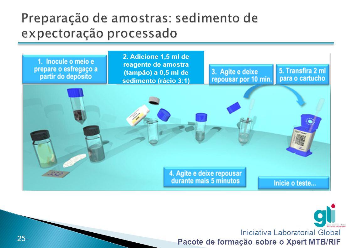 Iniciativa Laboratorial Global Pacote de formação sobre o Xpert MTB/RIF -25- 2. Adicione 1,5 ml de reagente de amostra (tampão) a 0,5 ml de sedimento