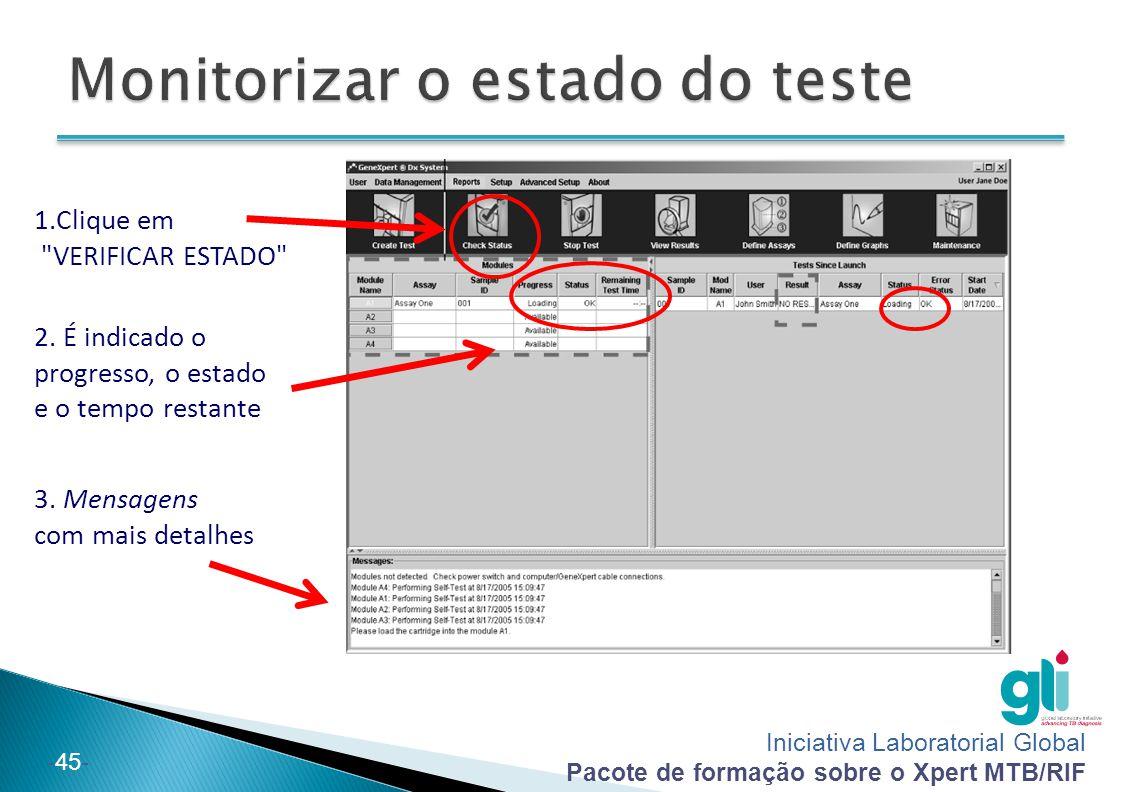 Iniciativa Laboratorial Global Pacote de formação sobre o Xpert MTB/RIF -45- 1.Clique em VERIFICAR ESTADO 2.