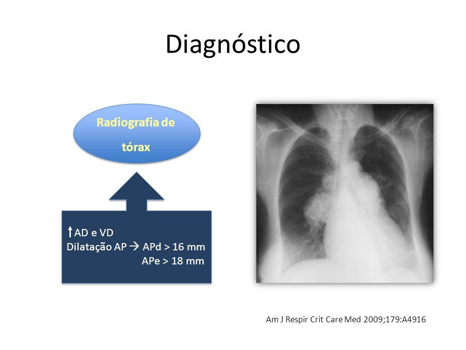 Diagnóstico Radiografia de tórax Radiografia de tórax Am J Respir Crit Care Med 2009;179:A4916 AD e VD Dilatação AP  APd > 16 mm APe > 18 mm AD e VD Dilatação AP  APd > 16 mm APe > 18 mm