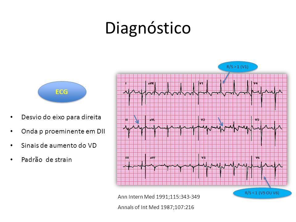 Diagnóstico Desvio do eixo para direita Onda p proeminente em DII Sinais de aumento do VD Padrão de strain ECG Ann Intern Med 1991;115:343-349 Annals of Int Med 1987;107:216 R/S > 1 (V1) R/S < 1 (V5 OU V6)