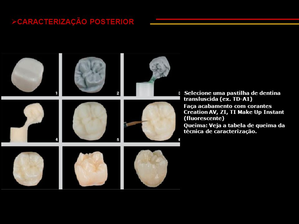 Selecione uma pastilha de dentina transluscida (ex. TD-A1) Faça acabamento com corantes Creation AV, ZI, TI Make Up Instant (fluorescente) Queima: Vej