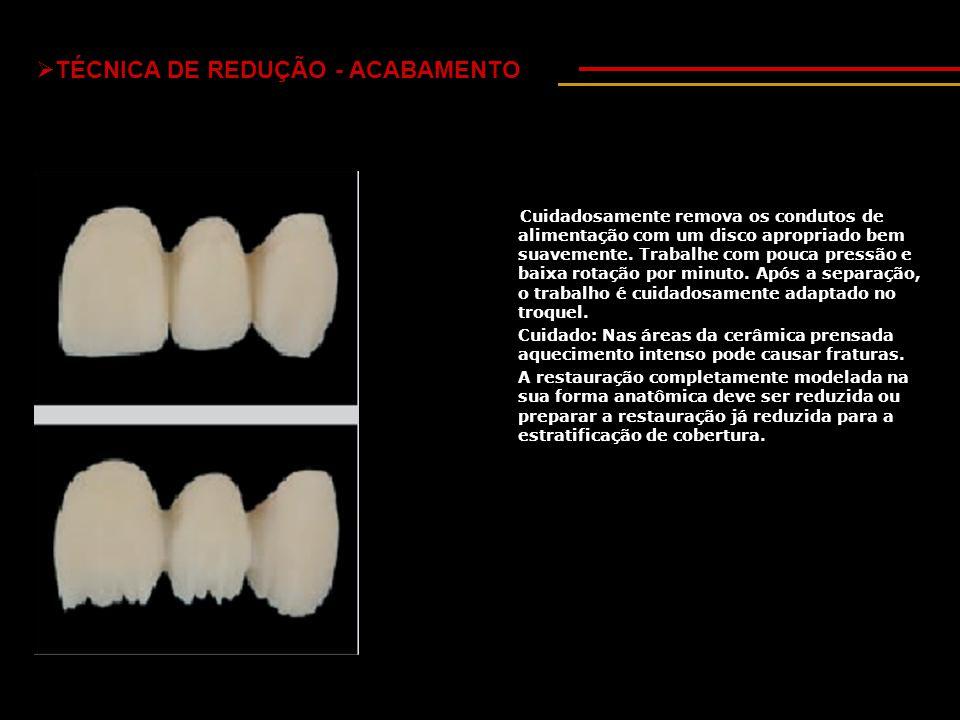  TÉCNICA DE REDUÇÃO - ACABAMENTO Cuidadosamente remova os condutos de alimentação com um disco apropriado bem suavemente.