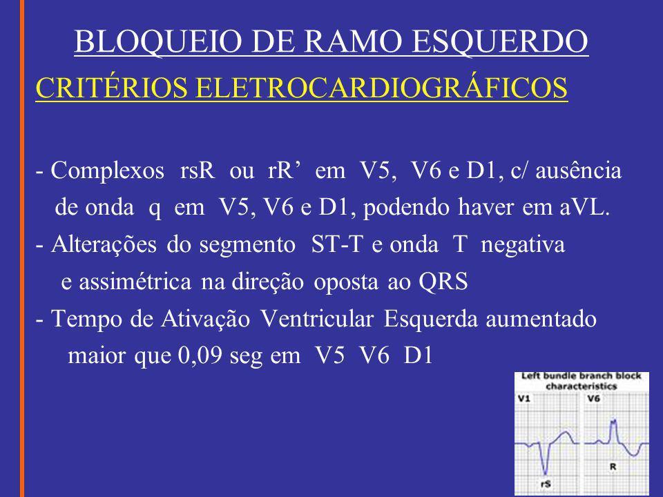 BLOQUEIO DE RAMO ESQUERDO CRITÉRIOS ELETROCARDIOGRÁFICOS - Complexos rsR ou rR' em V5, V6 e D1, c/ ausência de onda q em V5, V6 e D1, podendo haver em