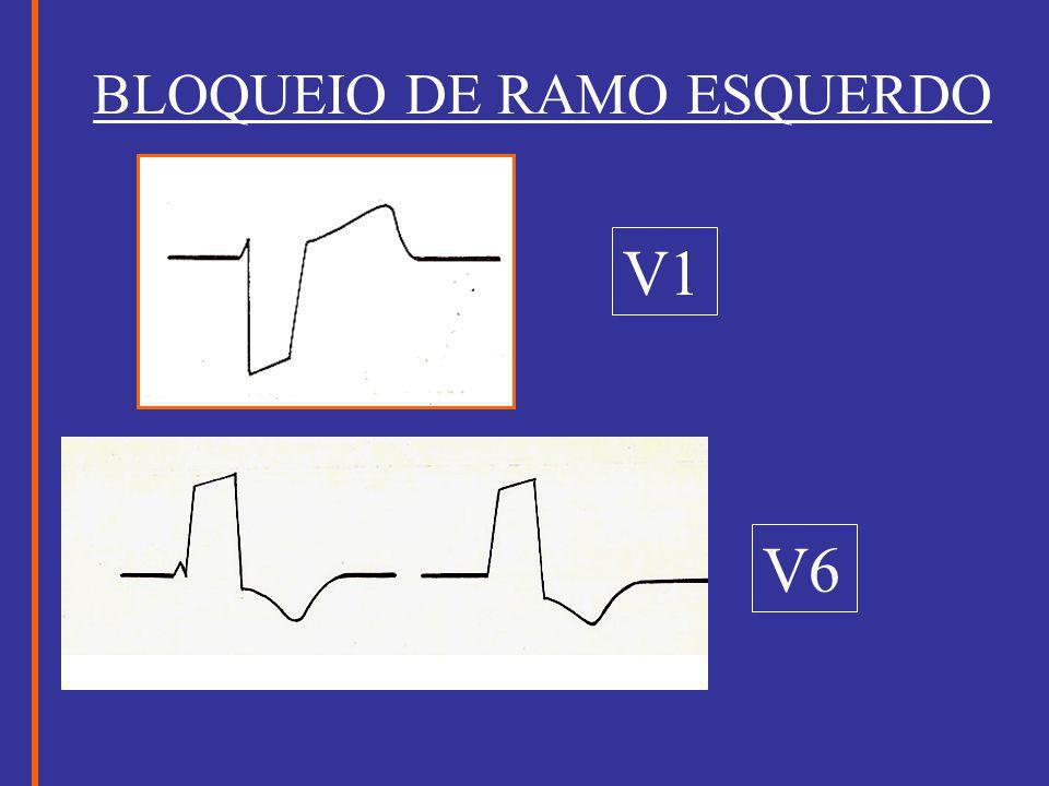 BLOQUEIO DE RAMO ESQUERDO V1 V6
