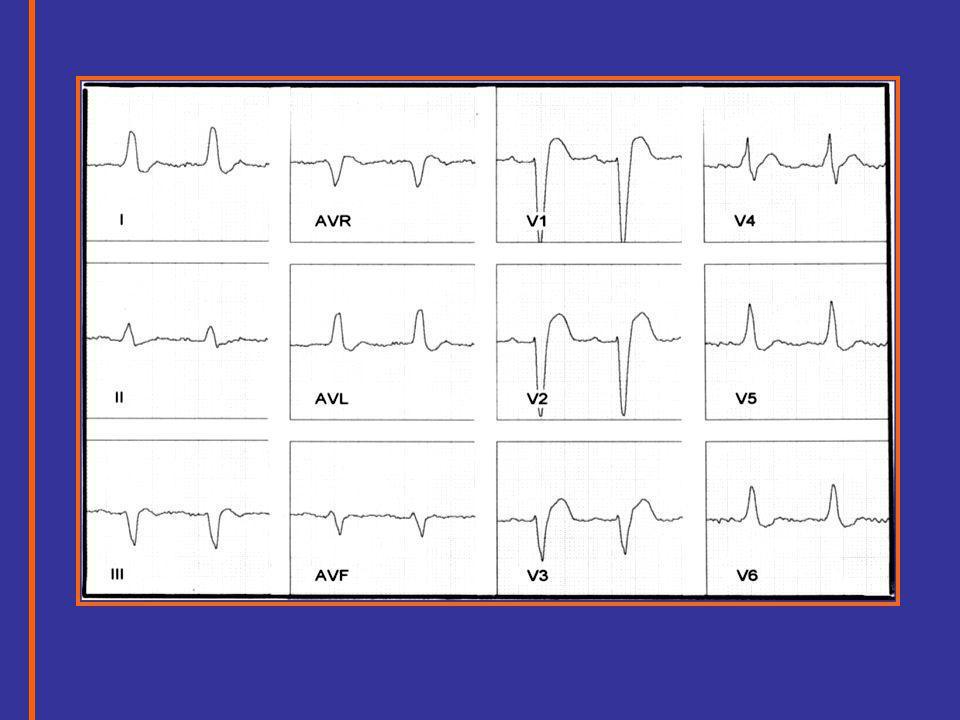 BLOQUEIO DE RAMO ESQUERDO Evolução Eletrocardiográfica normal 1 grau 2 grau 3 grau O OO V 6