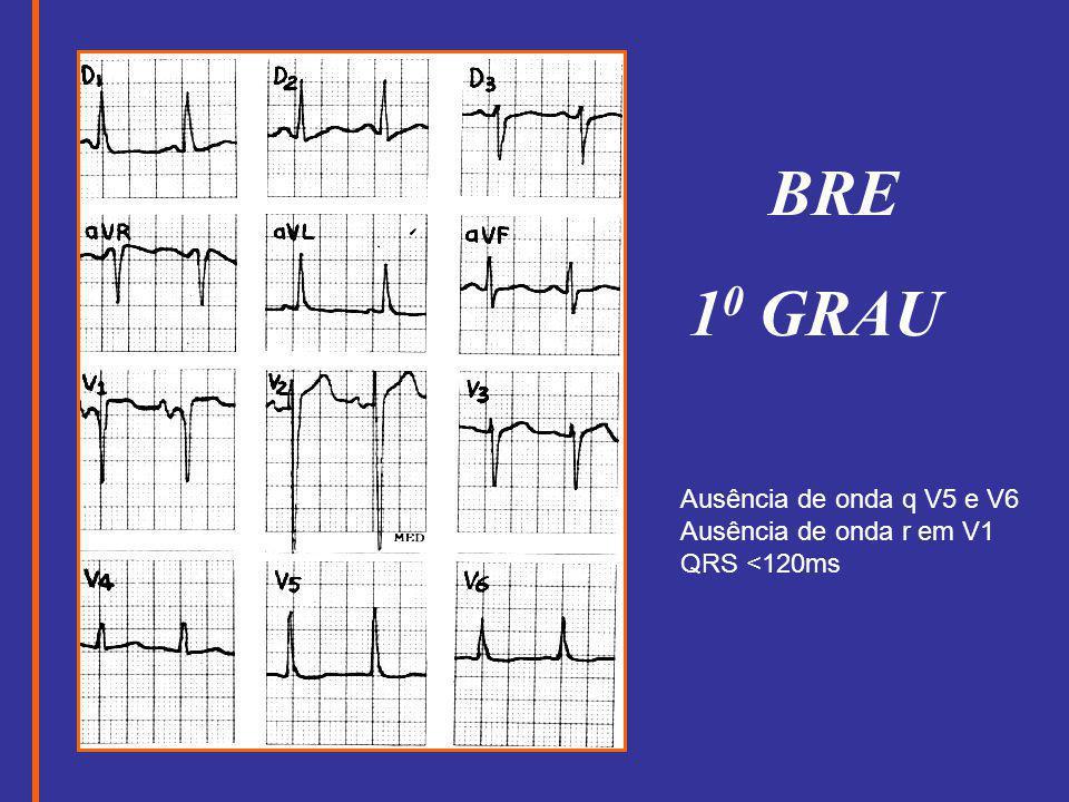 BRE 1 0 GRAU Ausência de onda q V5 e V6 Ausência de onda r em V1 QRS <120ms