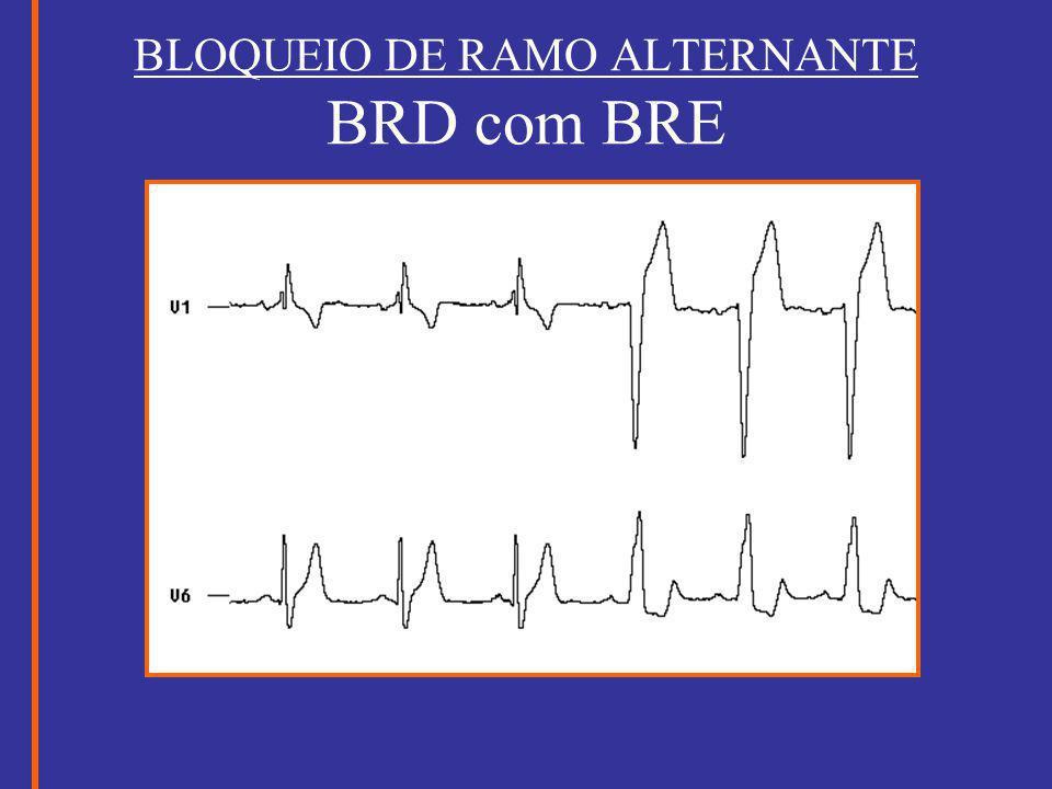 BLOQUEIO DE RAMO ALTERNANTE BRD com BRE