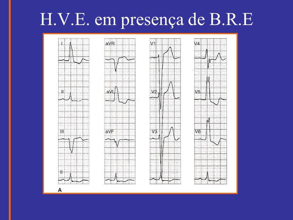 H.V.E. em presença de B.R.E
