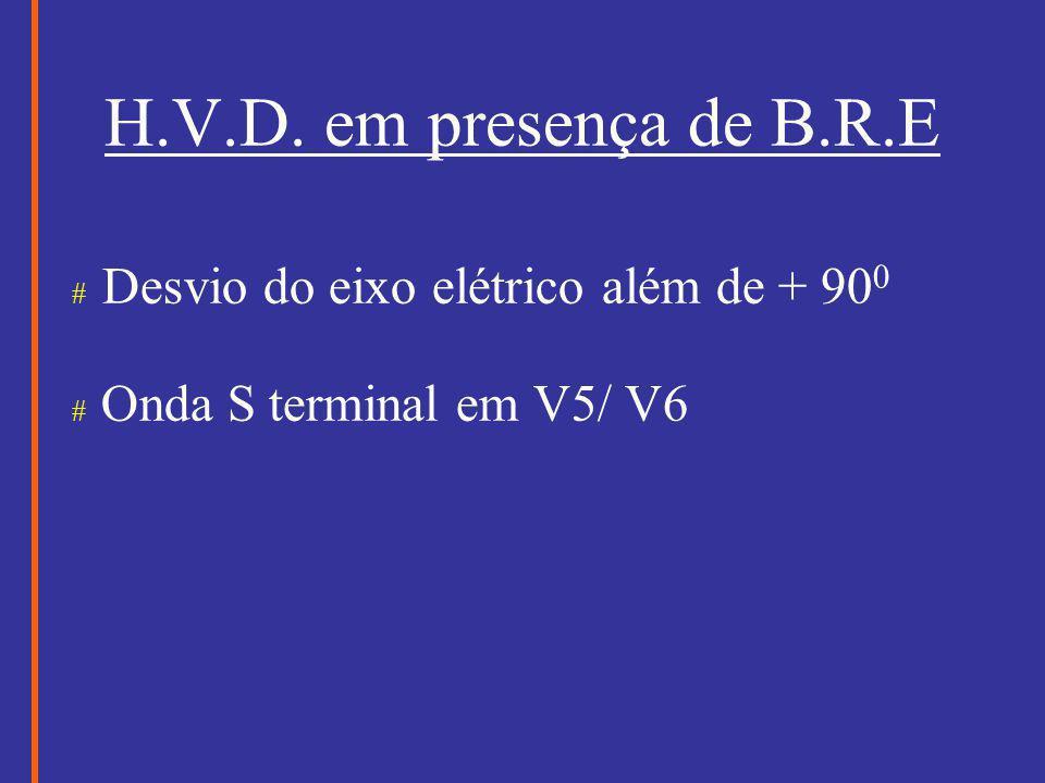 H.V.D. em presença de B.R.E # Desvio do eixo elétrico além de + 90 0 # Onda S terminal em V5/ V6