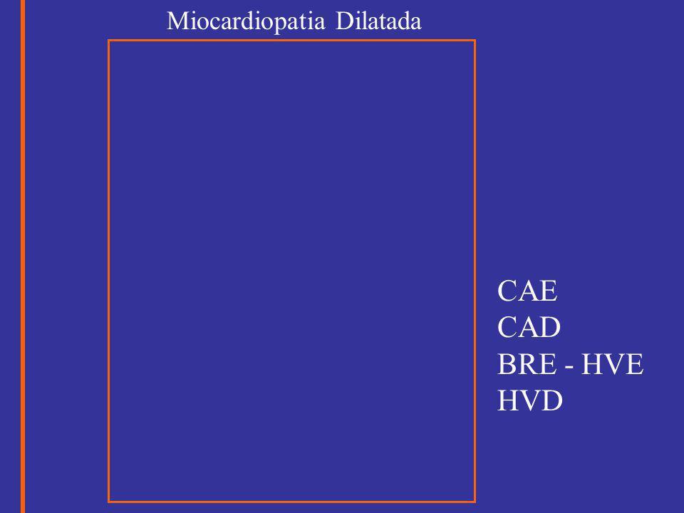 Miocardiopatia Dilatada CAE CAD BRE - HVE HVD