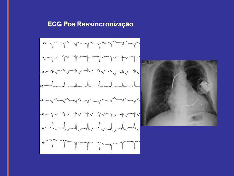 ECG Pos Ressincronização