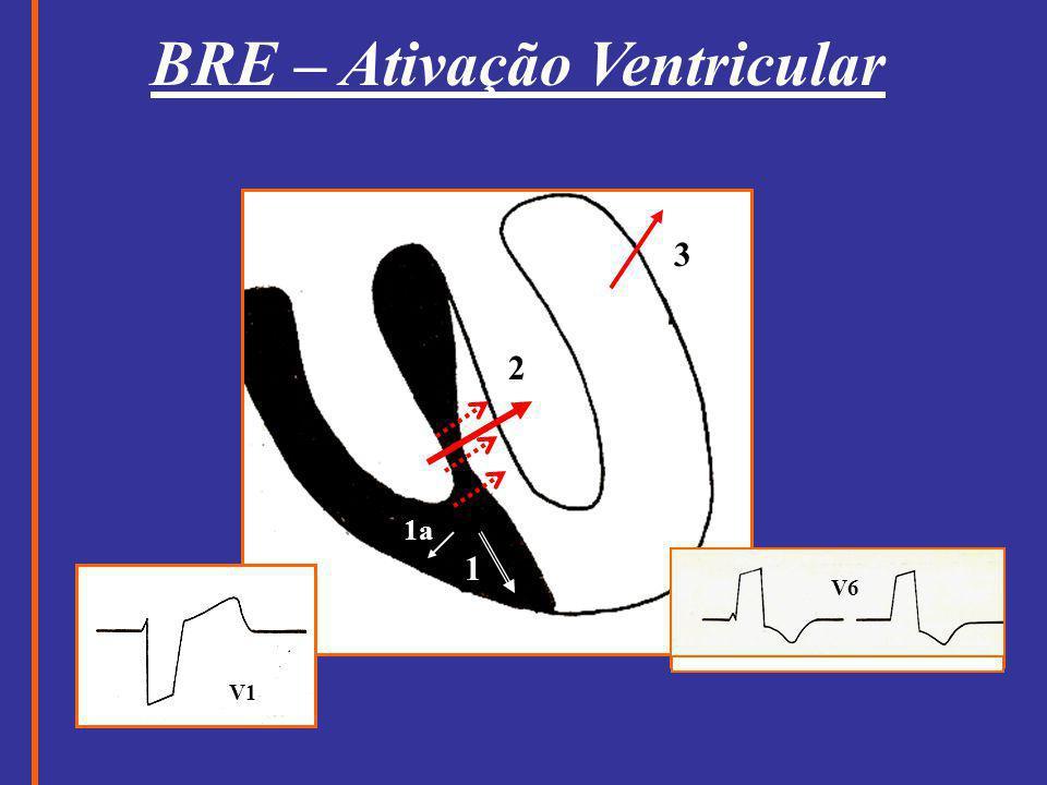 BRE – Ativação Ventricular 1 1a 3 2 V1 V6