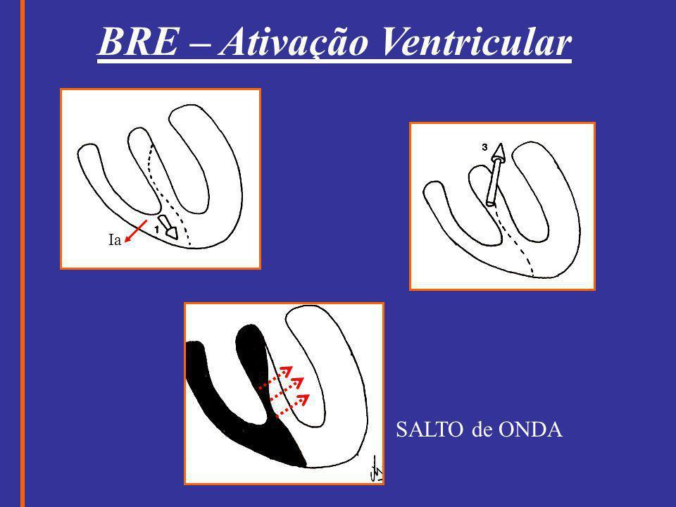 BRE – Ativação Ventricular Ia SALTO de ONDA