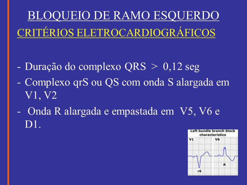 BLOQUEIO DE RAMO ESQUERDO CRITÉRIOS ELETROCARDIOGRÁFICOS -Duração do complexo QRS > 0,12 seg -Complexo qrS ou QS com onda S alargada em V1, V2 - Onda