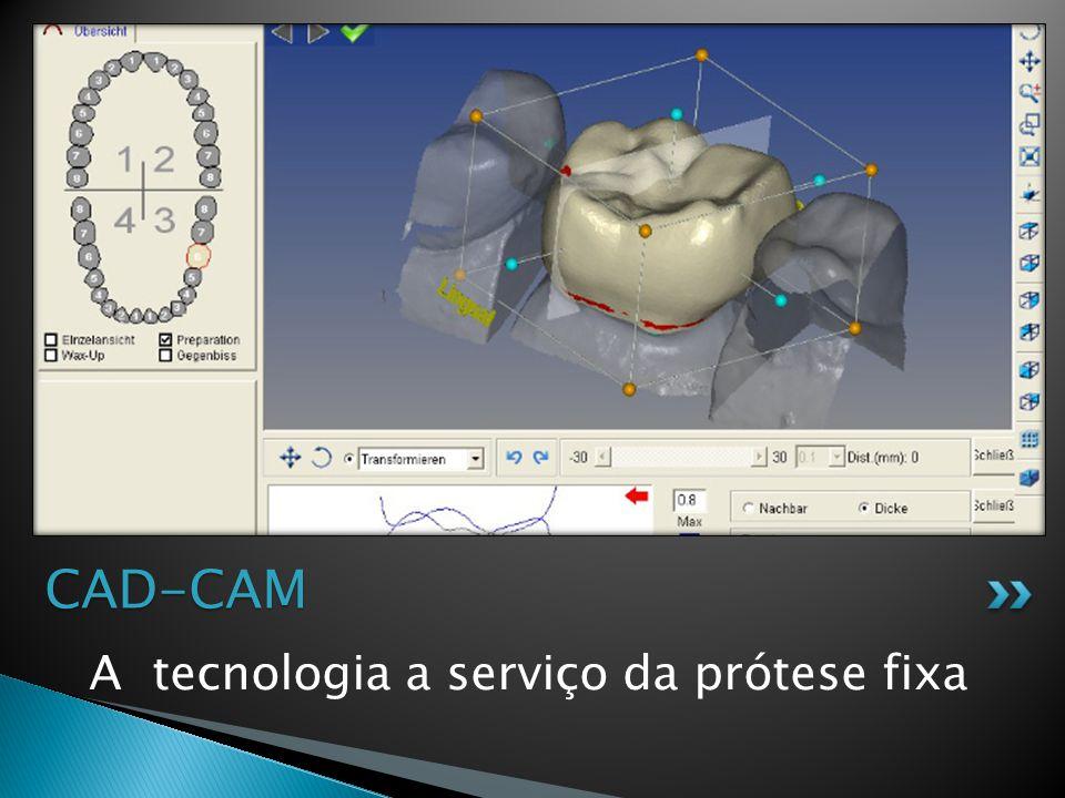 A tecnologia a serviço da prótese fixa CAD-CAM