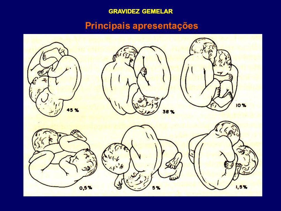 GRAVIDEZ GEMELAR Principais apresentações