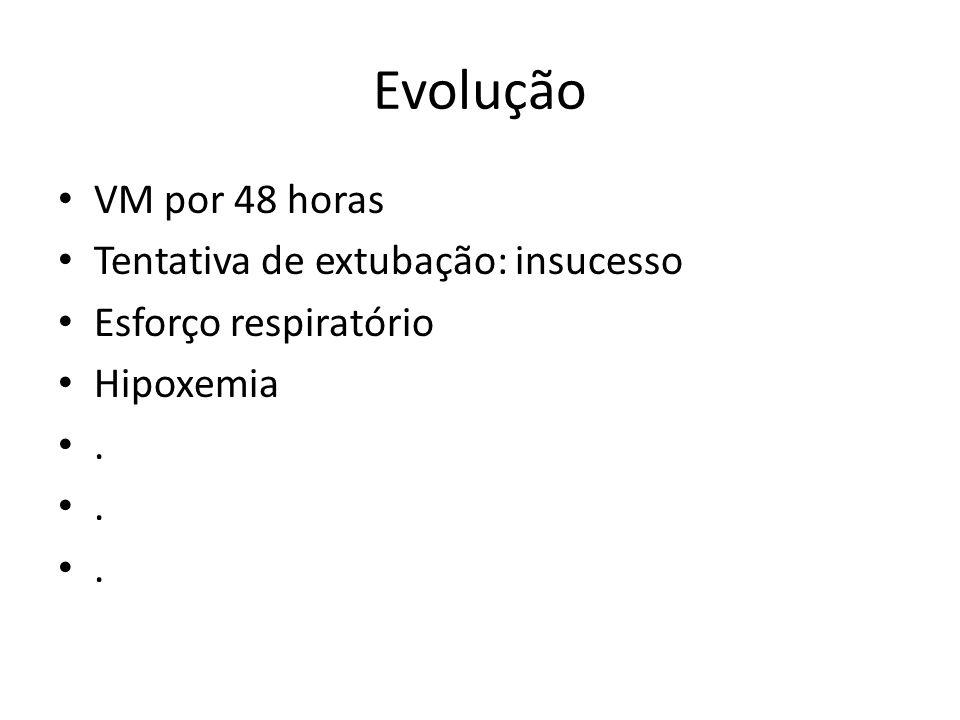 Evolução VM por 48 horas Tentativa de extubação: insucesso Esforço respiratório Hipoxemia.